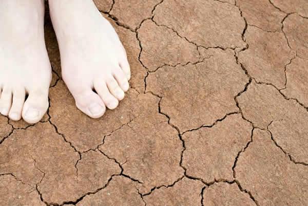 pies agrietados