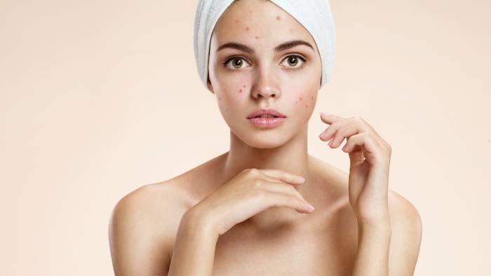 acne-maquillaje-mqs1