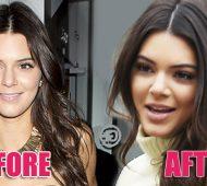 Kendall Jenner labios